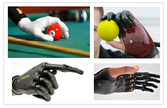 Arm and hand Prostheses